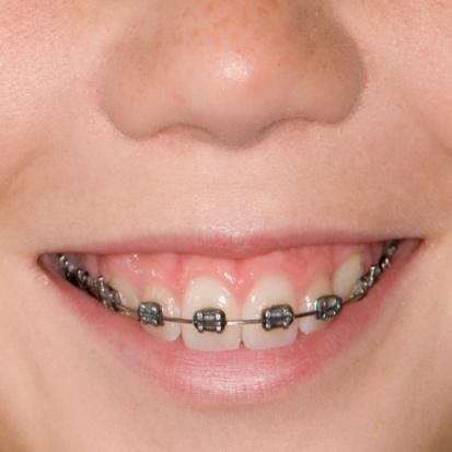 Naperville Orthodontics - Naperville, IL 60540 - (630)995-3547 | ShowMeLocal.com