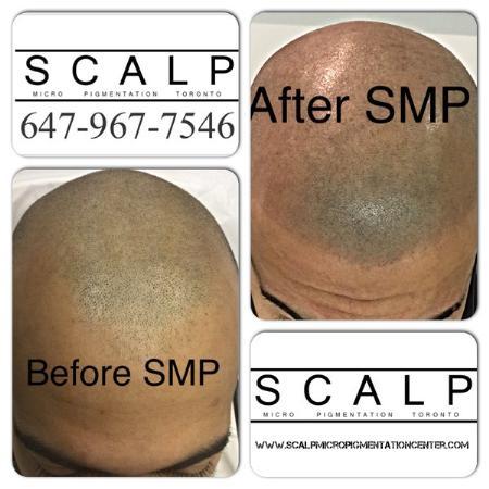 Scalp Micropigmentation Training Center - Toronto, ON M4P 3A1 - (844)877-2257   ShowMeLocal.com