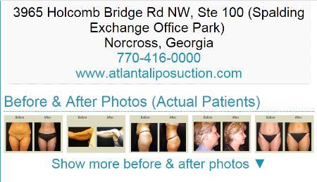 Atlanta Liposuction Specialty Clinic - Norcross, GA 30092 - (770)766-5070   ShowMeLocal.com